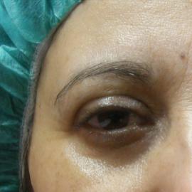 ANTES - micropigmentacion de cejas