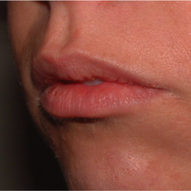 Dermopigmentacion o Micropigmentacion de LABIOS NATURAL